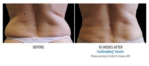 thumb_4211 CoolSculpting in Scottsdale