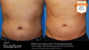 20248384_1352971458104991_3468597645682595626_o-960x540-300x169 SculpSure in Scottsdale