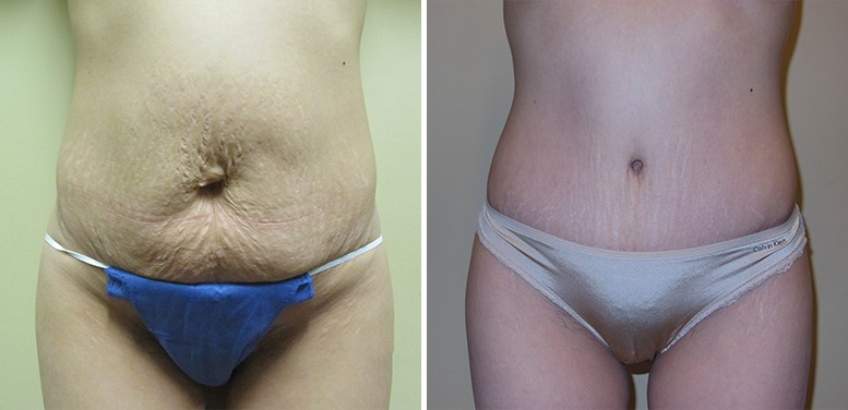 Abdominoplasty-19-after_01 Tummy Tuck in Scottsdale