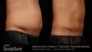 BA-SculpSure-S-Doherty-2TX-12WKs-1024x576-300x169 SculpSure in Scottsdale
