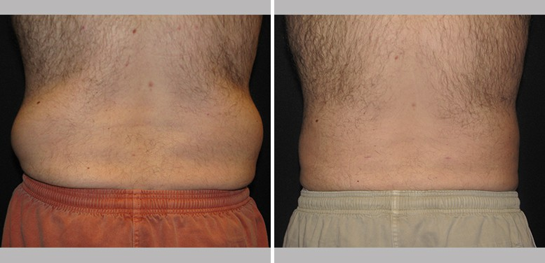 Lipo-Men-11-after_01 Liposuction For Men In Scottsdale