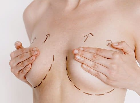 img-breast-lift Breast Surgery In Scottsdale