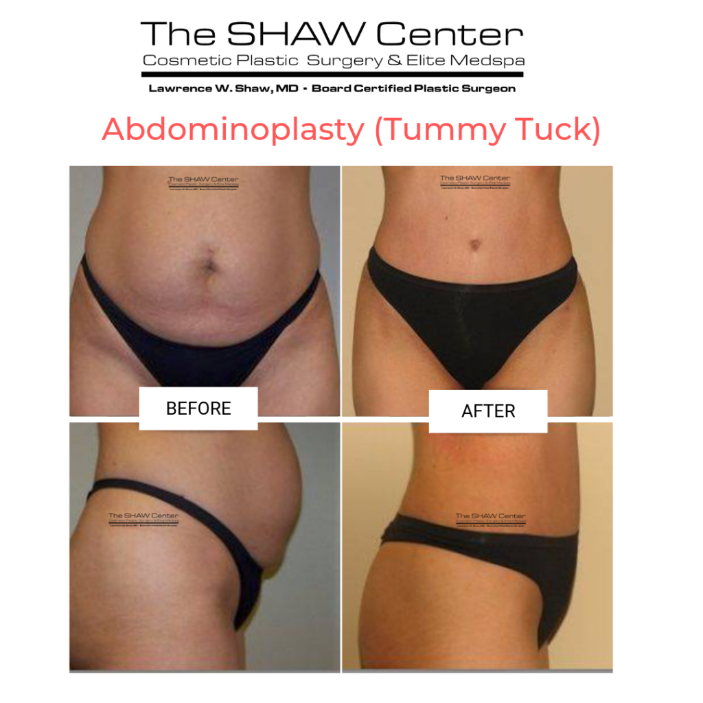 Dr-Shaw-Tummy-Tuck-Before-and-After-1-1024x1024 Considering a Tummy Tuck? Here's everything you need to know:Body Tummy Tuck