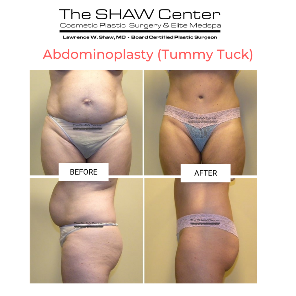 Dr-Shaw-Tummy-Tuck-Before-and-After-2-1024x1024 Considering a Tummy Tuck? Here's everything you need to know:Body Tummy Tuck