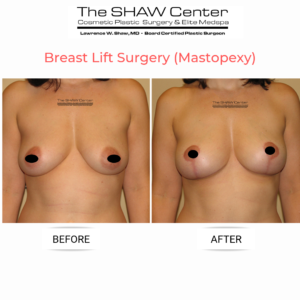 breast-lift-surgery-before-and-after-the-sahw-center-scottsdale-arizona-dr-shaw-2--300x300 Everything You Need to Know About a Breast Lift (Mastopexy) at The SHAW CenterBreast