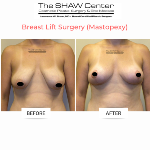 breast-lift-surgery-before-and-after-the-shaw-center-scottsdale-arizona-dr-shaw-3-300x300 Everything You Need to Know About a Breast Lift (Mastopexy) at The SHAW CenterBreast