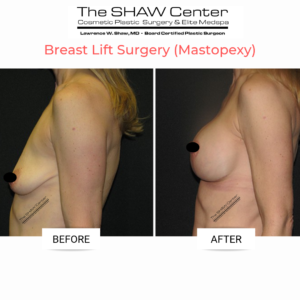 breast-lift-surgery-before-and-after-the-shaw-center-scottsdale-arizona-dr-shaw-300x300 Everything You Need to Know About a Breast Lift (Mastopexy) at The SHAW CenterBreast