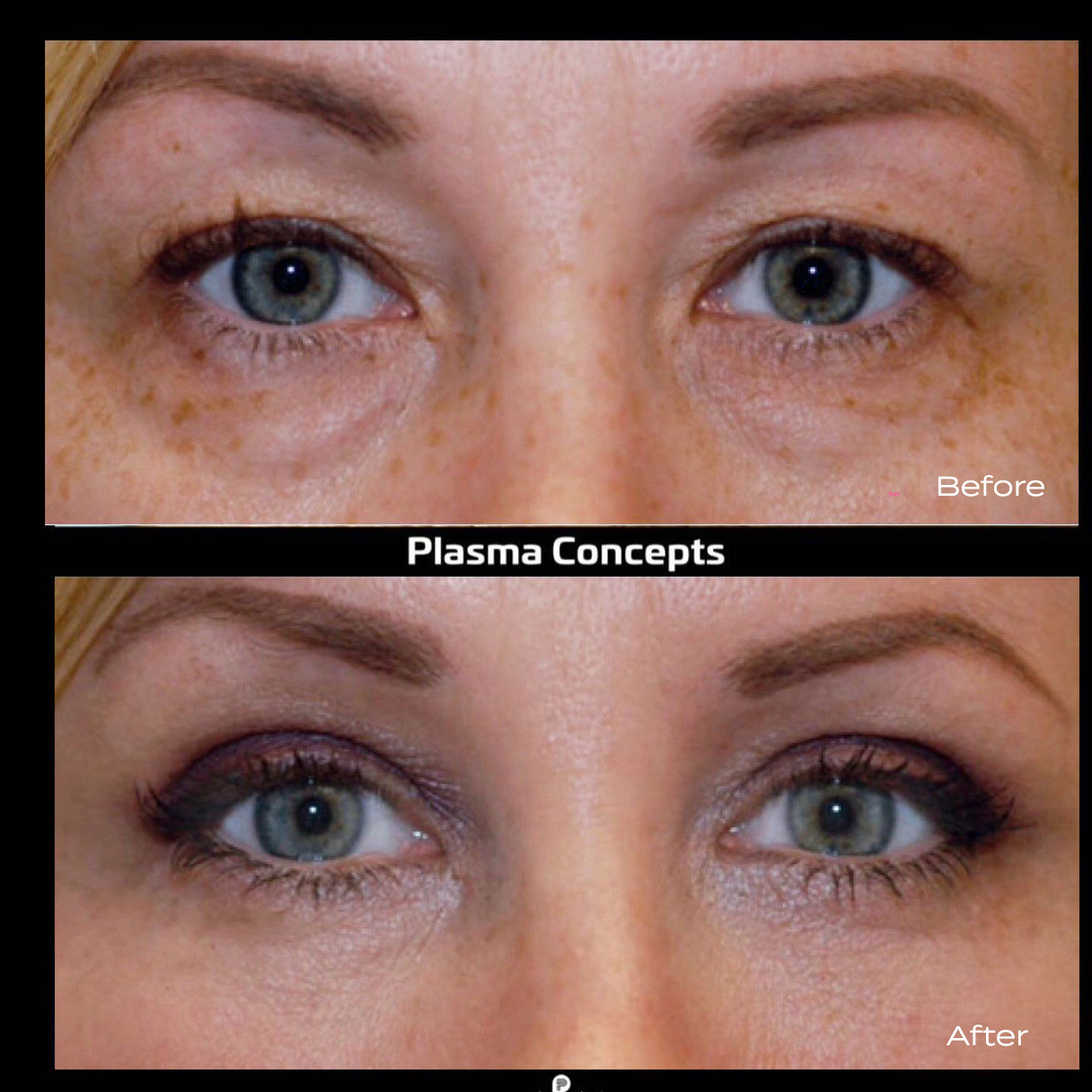 plasma-pen-before-and-after-eyes Plasma Pen